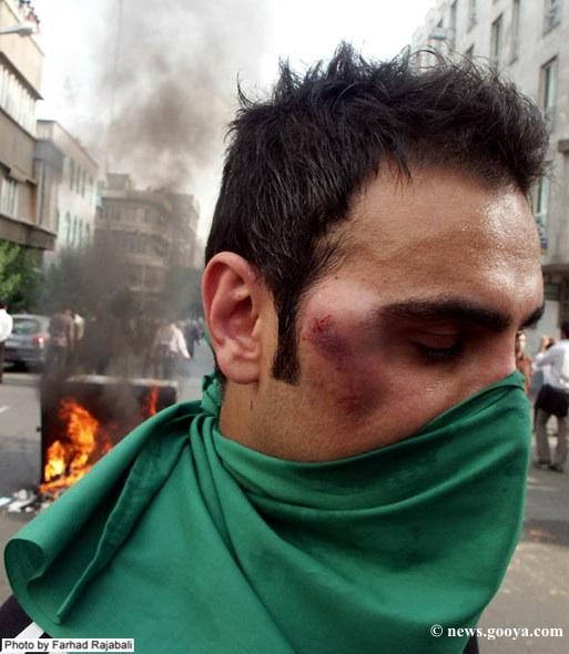 iran-protestor-bruised