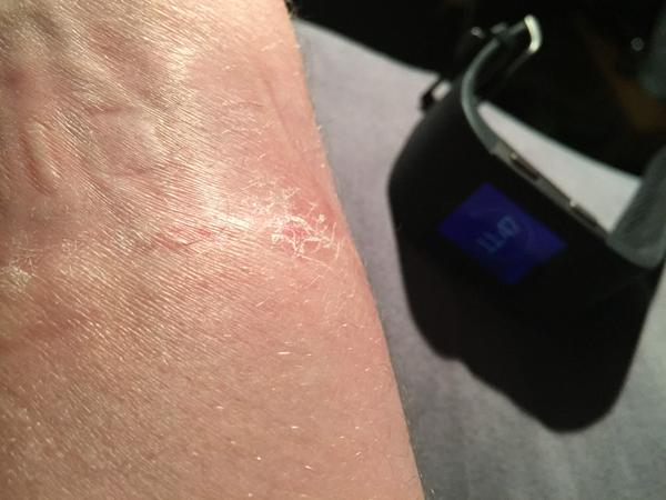 Fitbit Acknowledges Latest Devices Are Causing Rashes, Advises To