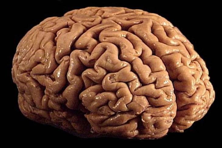Monclarity Raises 5m And Launches Its Brain Training App Brainwell