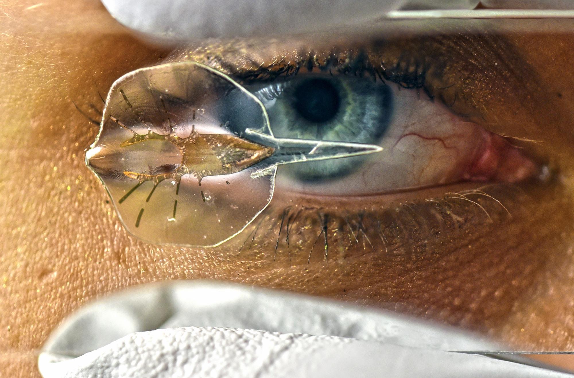 Anatomy of stingray