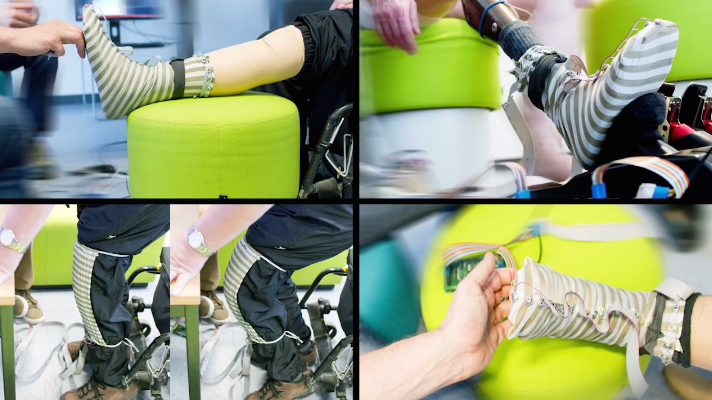 prosthetic_examples