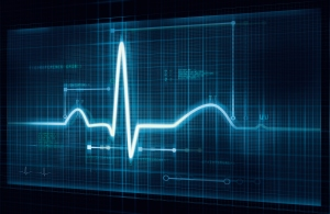 Electrocardiogram (ECG) trace. An ECG measures the electrical activity of the heart.
