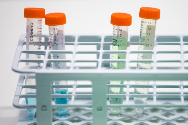9 promising at-home lab test startups for everything from ...