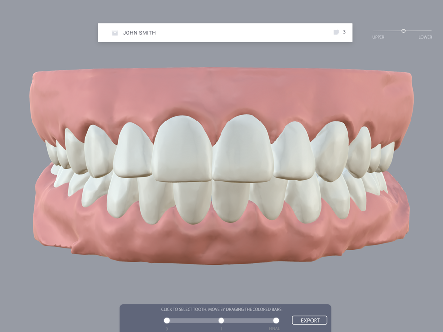 This 3D-printing startup helps orthodontists straighten your teeth