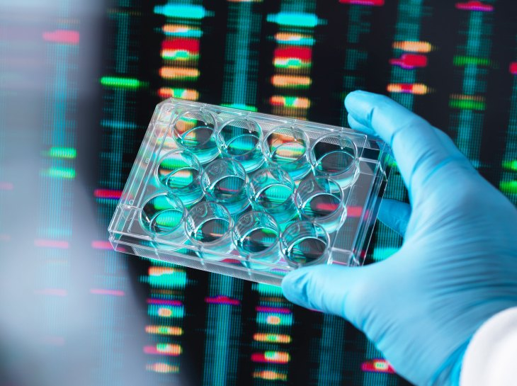 DNA Research, Scientist holding up a multi well plate containing DNA samples with results on the computer screen