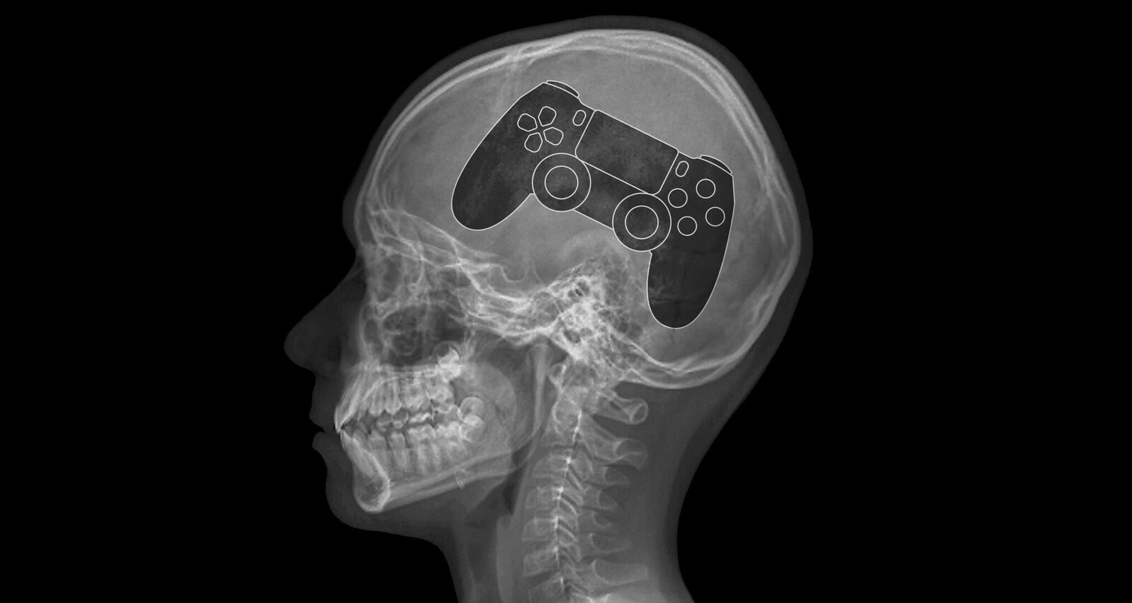 What is gaming disorder? Do you need to worry?