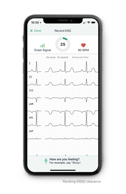 not to be overshadowed by the apple watch  alivecor