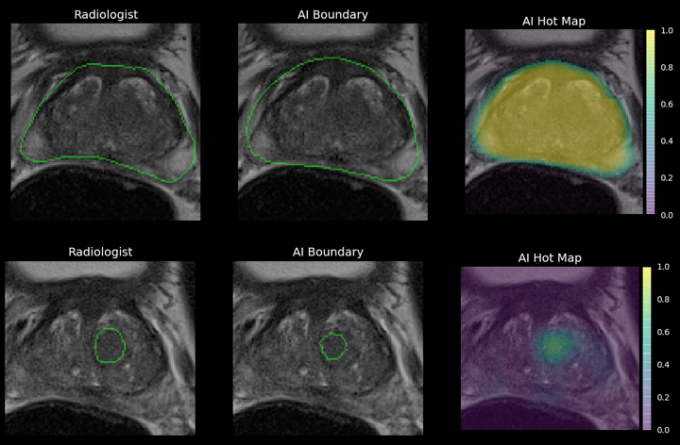 Ezra raises $4M to diagnose cancer with MRIs, not painful