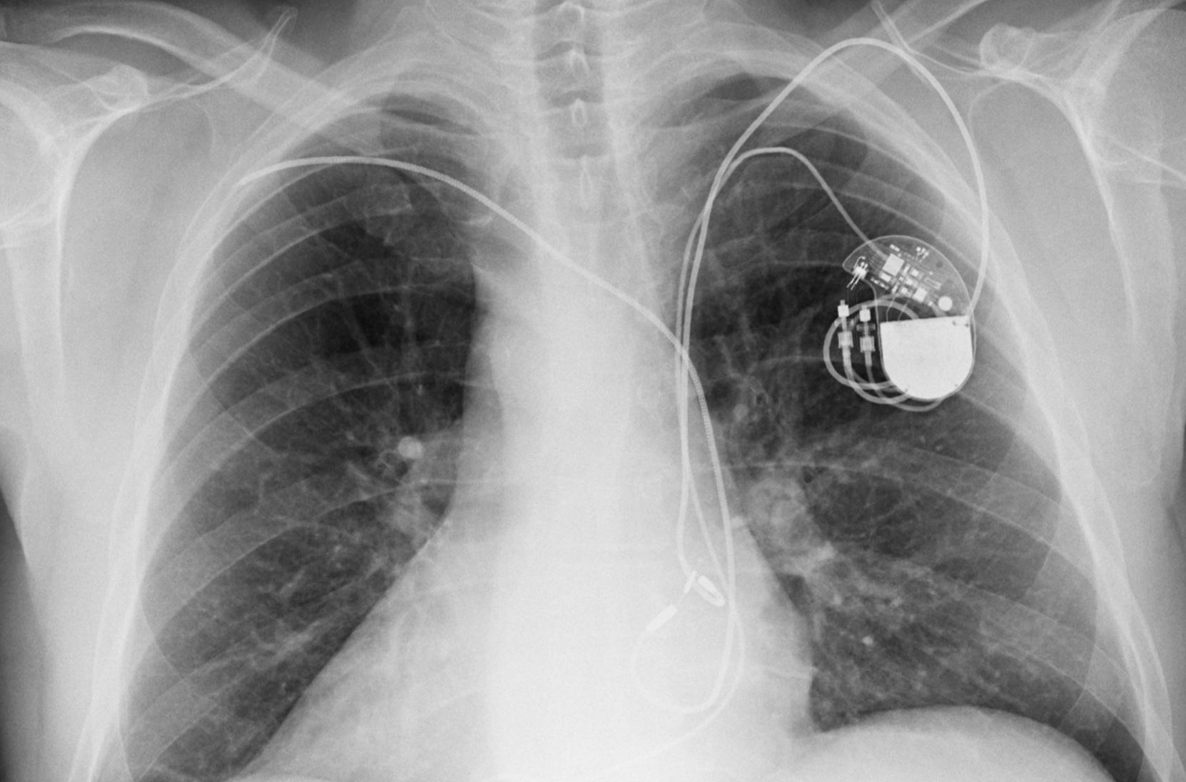 techcrunch.com - Zack Whittaker - Homeland Security warns of critical flaws in Medtronic defibrillators