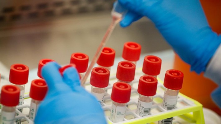 Scanwell begins 1,000 person study for at-home antibody test for COVID-19 thumbnail