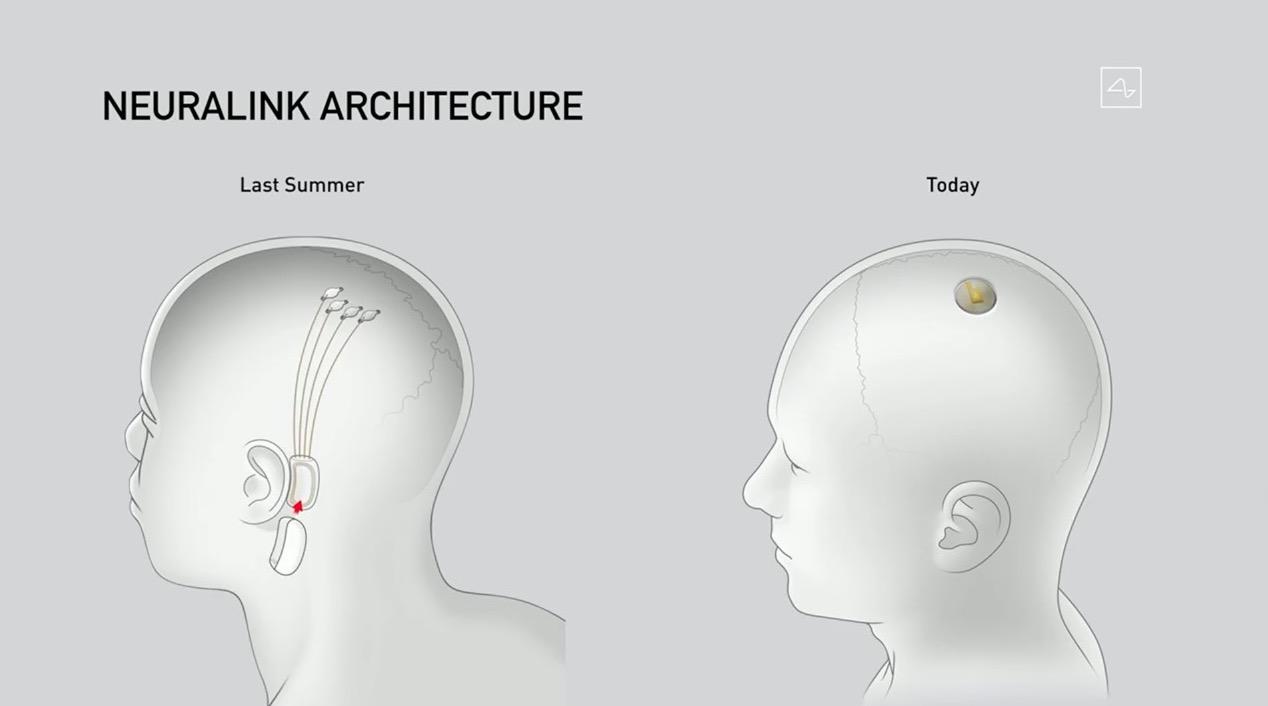 neuralink-1
