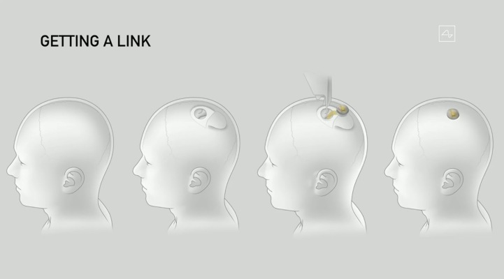 Elon Musk demonstrates Neuralink's tech live using pigs with surgically implanted brain-monitoring devices thumbnail