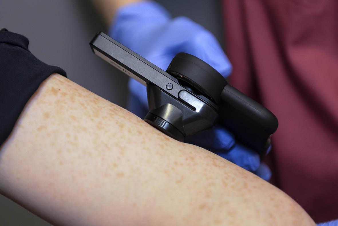 https://techcrunch.com/wp-content/uploads/2020/09/132880_Skin-Analytics-Teledermatology-Project_Clinical-Photography-5-r....jpg